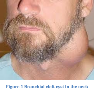 Removal of Branchial Cleft Cyst