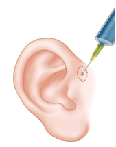 Excision of Preauricular Sinuses