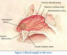 Nasal Surgery for Episgtaxis (Nosebleeds)