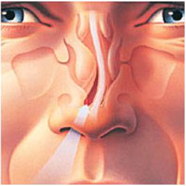 Septoplasty (Repair Deviated Septum)